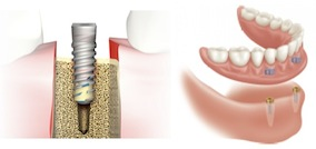 Dental Implant and Overdenture Diagram