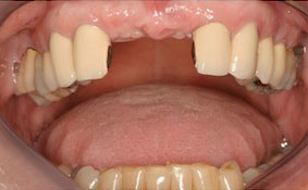 Before Dental Implant Procedure